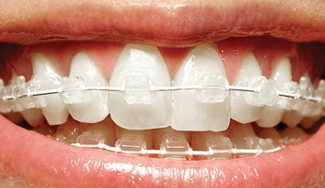 What do fixed ceramic braces look like